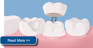dental crown shoreview