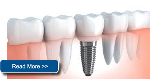 dental implants shoreview